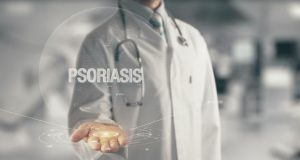 psoriasis flare up