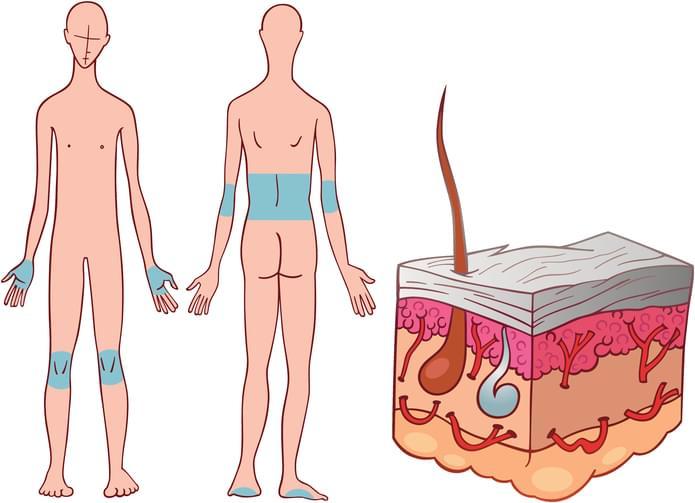 psoriasis prognosis
