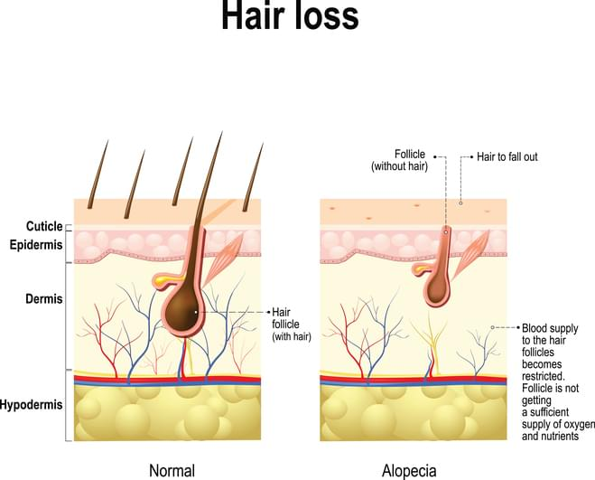 natural hair restoration