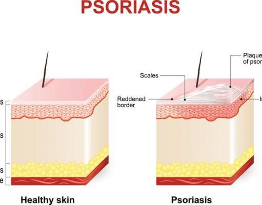 plaque psoriasis photos