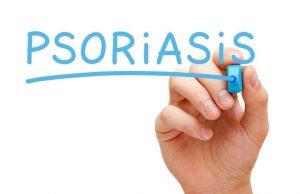 medicine for psoriasis skin disease